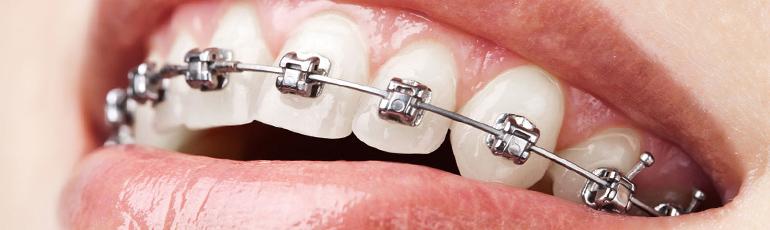 «Современные возможности ортодонтии и ортогнатической хирургии»