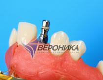 Имплант Porex стоматология обучение