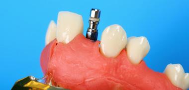 Ортопедическая стоматология программа спб